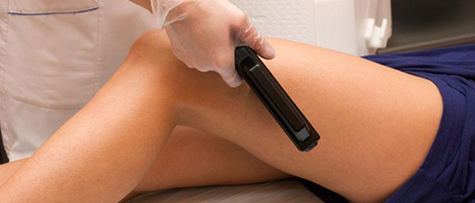 Se la rimozione dei capelli laser aiuta con peli incarniti